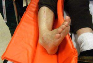Перелом ноги в двух местах степень тяжести
