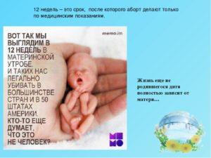 Почему делают аборт до 12 недель